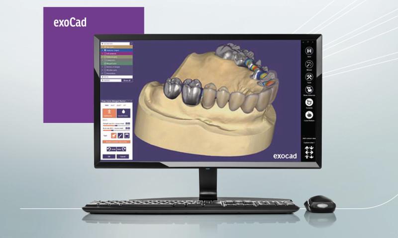 Exocad - Software per l'elaborazione e modellazione odontotecnica